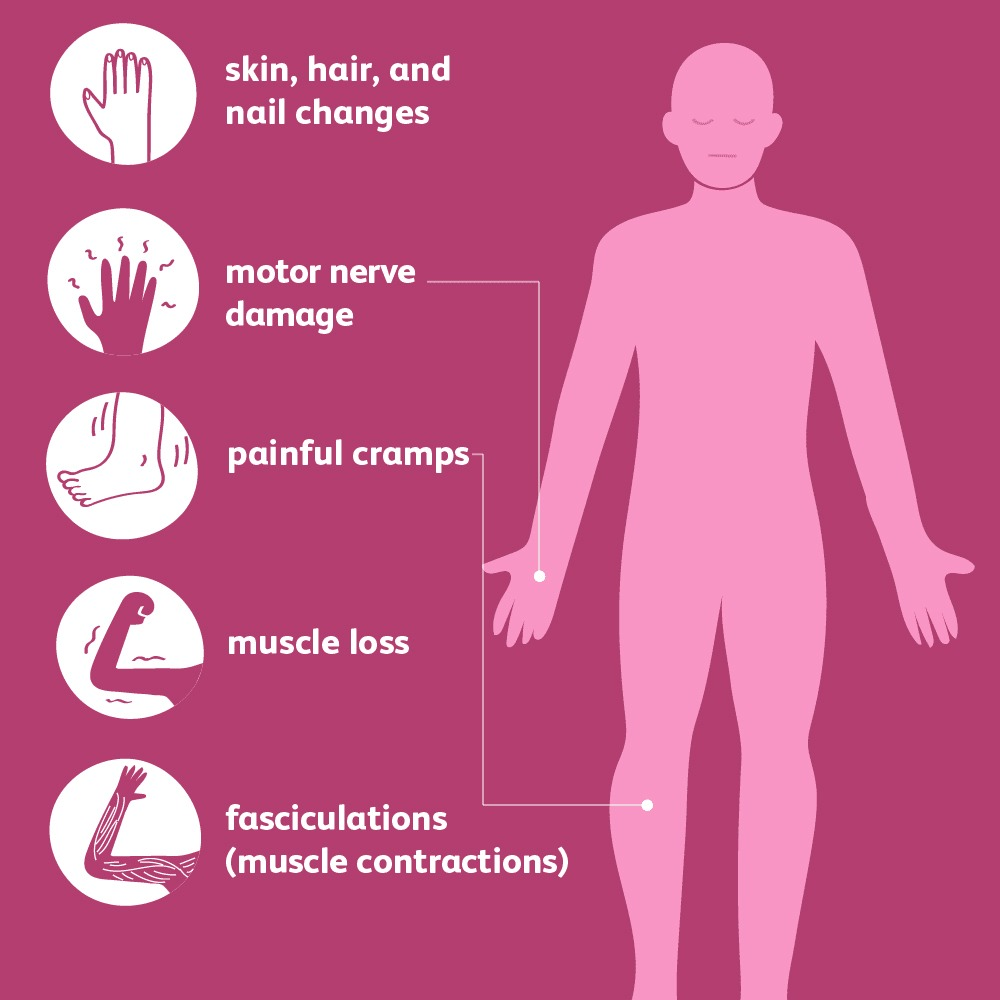 Neuropathy-massage-treatment-Tampa What is a neuropathy and how does massage help? Tampa