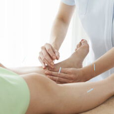 Acupuncture Camden pain relief