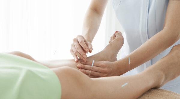 Acupuncture Camden leg pain reflief