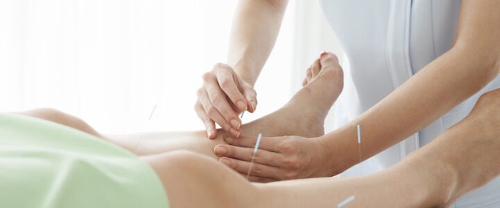 Dry Needling vs Acupuncture: What's the difference?