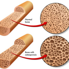 Osteoporosis: Lets sort out the myths from the facts