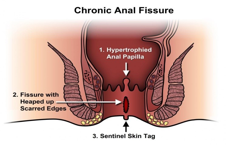 best fistula treatment in hyderabad