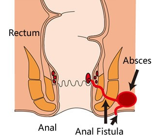 best doctor for fistula treatment in hyderabad