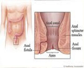 best ayurvedic treatment for anal fissure