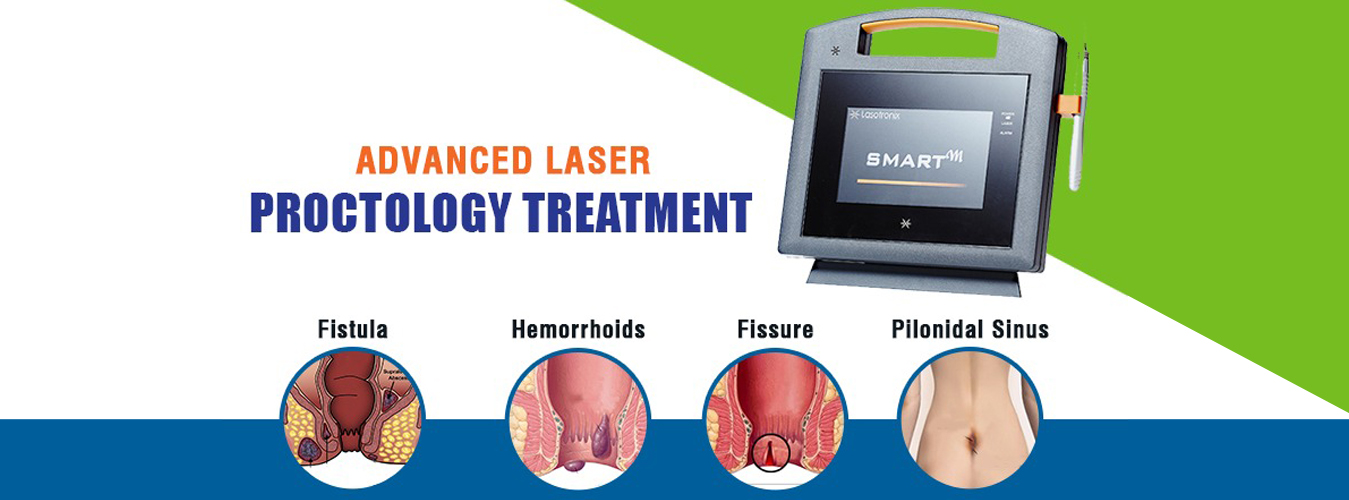 advanced laser treatment for pilonidal sinus