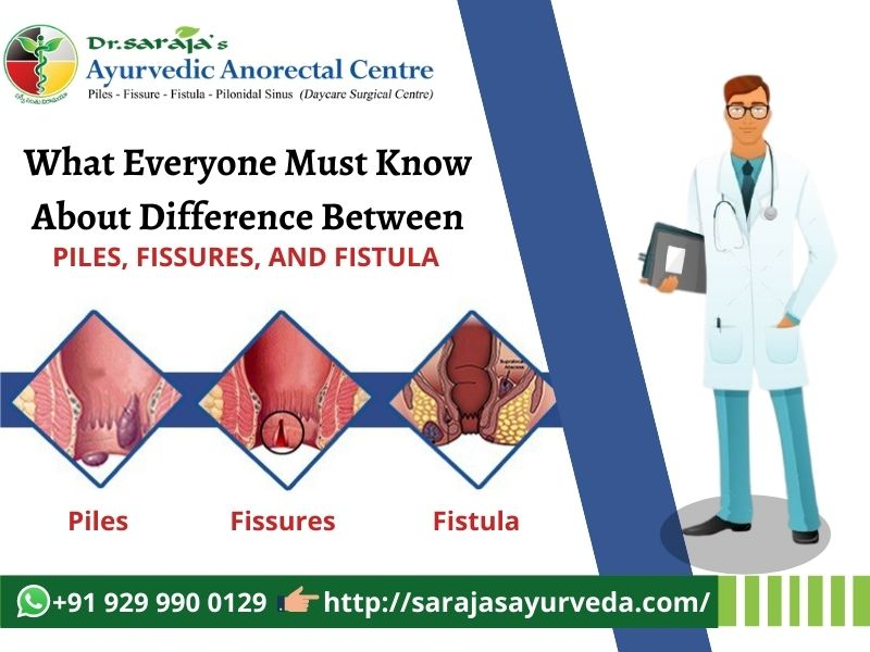 Difference Between Piles, Fissures, and Fistula