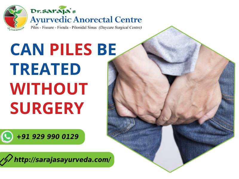 Can piles be treated without surgery1