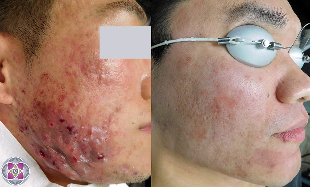 Laser Acne Treatment To Eliminate Cystic Acne