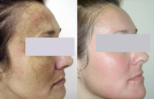 Before and After Laser Melasma Treatment