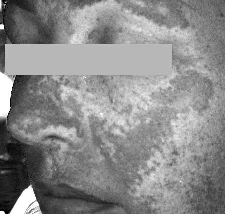 Melasma under a UV light