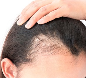Hair loss is one of the physical effects of stress on the body