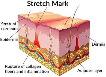 The anatomy of a stretch mark
