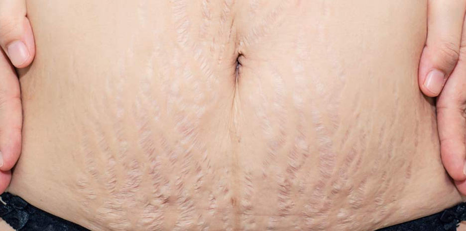 Old  Cream Stretch Marks For Sale