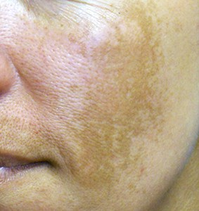 The dark patches of Melasma on the cheek