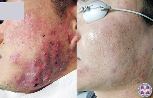 How to get rid of acne? Multiple modality protocols are the best way