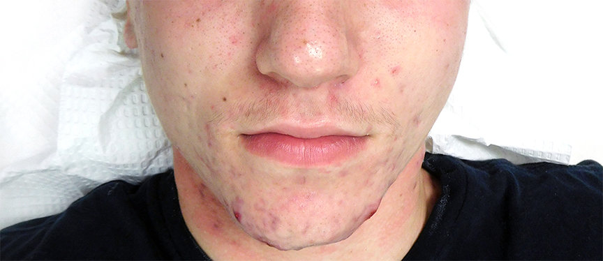 How to Get Rid of Acne? A multiple-modality protocol works the best to eliminate acne!