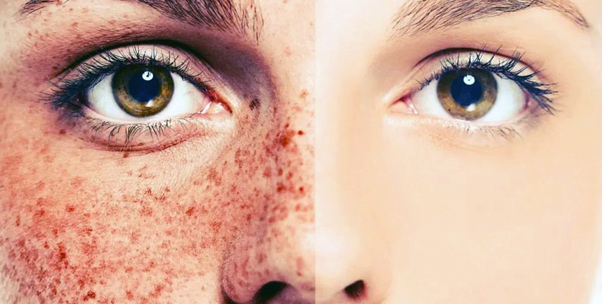 How much damage can the sun really do to our skin?