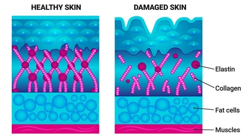 Your highly organized collagen is broken down by the sun and replaced with defective elastin fibers.