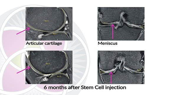 MRI of cartilage in the knee being regenerated with the use of stem cells.