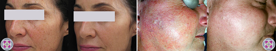 Lasers are the secret of how to look younger - Before and After laser treatment for Age Spots (left) and Rosacea (right)