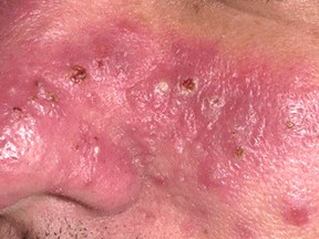 Inflammatory Rosacea: Skin that is inflamed, sensitive to touch, oozing and oily