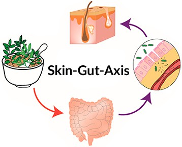 Acne vulgaris, probiotics and the skin gut axis