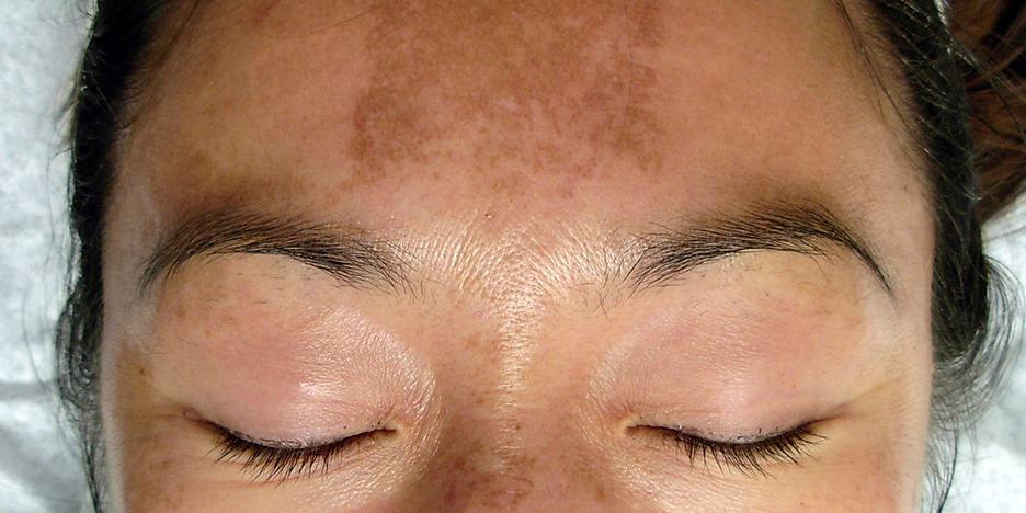 The most common Melasma causes include: sun exposure and hormonal changes caused by pregnancy or birth control