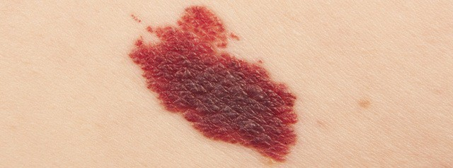 Vascular birthmarks are caused by an anomalous bunching up of blood vessels underneath the skin.