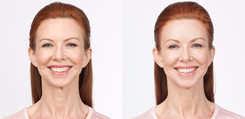 Before and After Botox Treatment for moderate to severe frown lines