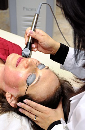 Using an RF device to tighten the skin on a patient's face