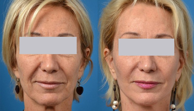 What is a Facelift? Before and After a Surgical Facelift.