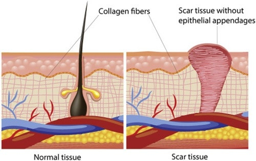 Scar tissue does not have the flexibility of normal skin because the fibers are all oriented in the same direction. The multi-directional complexity of the basket-weave cross linking of healthy collagen is lost.