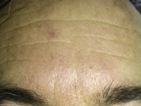Wrinkles on the forehead