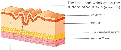 Dermal fillers are carefully injected under the skin to correct the lines and wrinkles