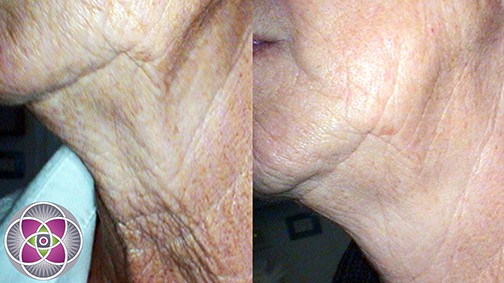 The results of microneedling... Before and after the microneedling treatment