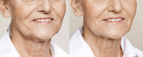 Before and After filler treatment for jowls