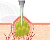The Nd:YAG Laser targets the sebaceous gland
