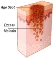 Excess melanin creates age spots