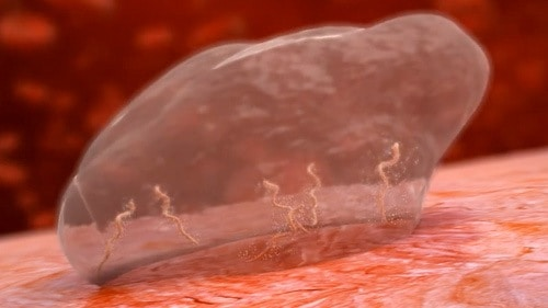 The Borrelia spirochaete can create a biofilm to protect itself from your immune system and antibiotics.