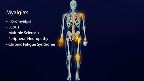 Borrelia often lodge within the joints causing a variety of joint myalgia's as well as other symptoms.