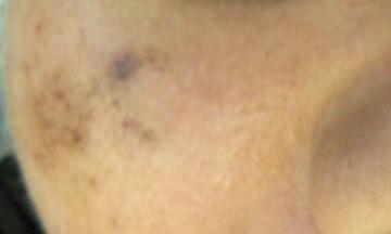 Melasma caused by sun exposure