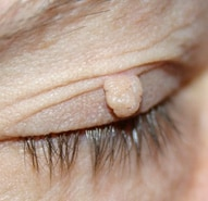 Skin Tag on Eyelid