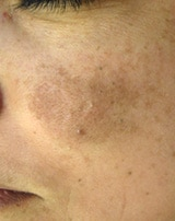 Melasma on a patient's cheek