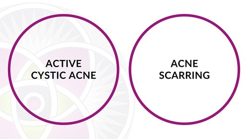The conventional method of dealing with cystic acne involves treating the active cystic condition first