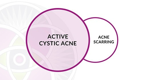 With the laser protocols we have developed here we can treat both the active cystic acne and the acne scarring at the same time