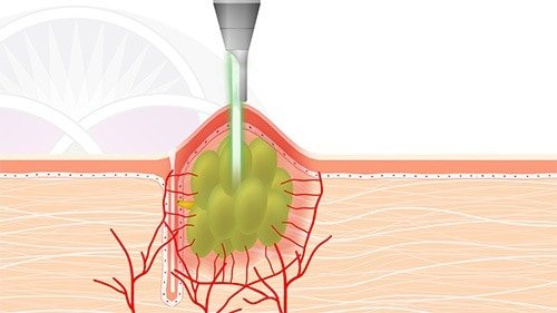 The Nd:YAG laser energy penetrates into the sebaceous gland which causes it to dry up and shrink down