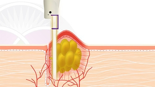 The vascular laser interacts with all the inflammation and vasculature causing it to disappear