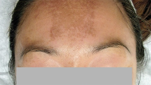 Melanocytes in Type IV skin are not only sensitive to the sun but also to hormonal fluctuations