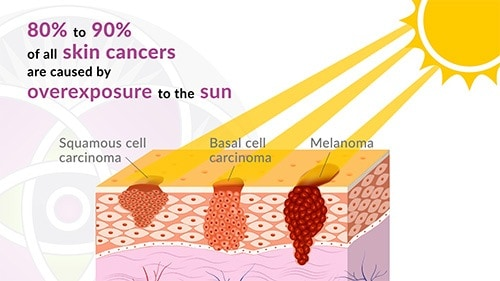 80 to 90% of all skin cancers are caused by overexposure to the sun