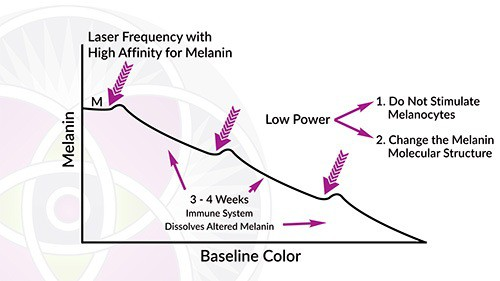 Over the next 3 weeks the melasma will fade away. Once it stabilizes we treat again and it fades away.